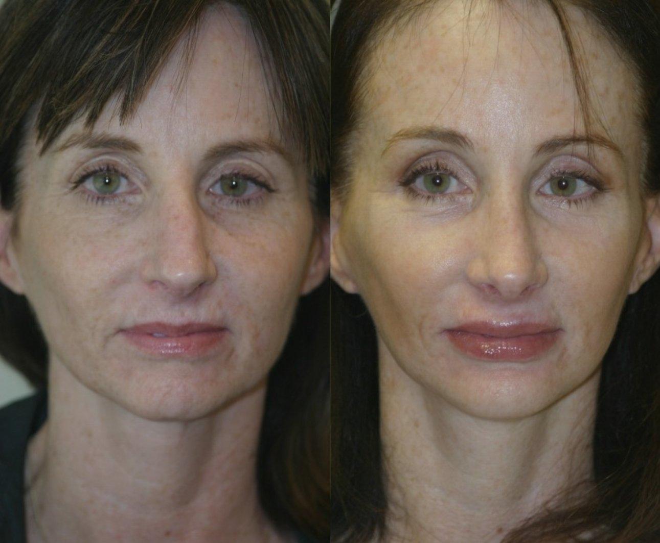 rhinoplasty, chin implant, browlift, facelift
