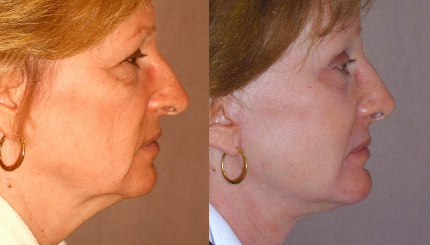 rhinoplasty, no fracture, chin implant, browlift, facelift, side