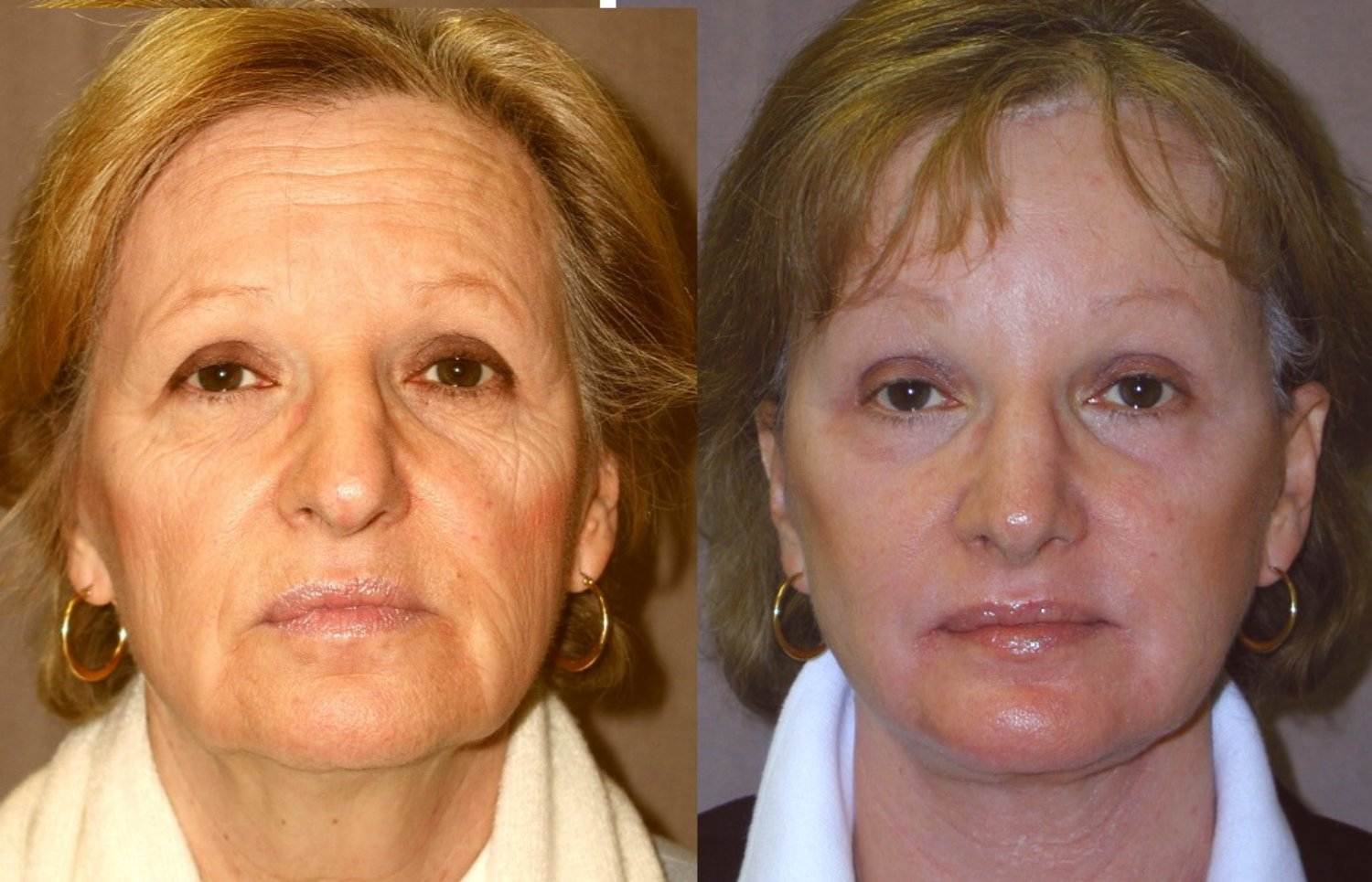 rhinoplasty, no fracture, chin implant, browlift, facelift