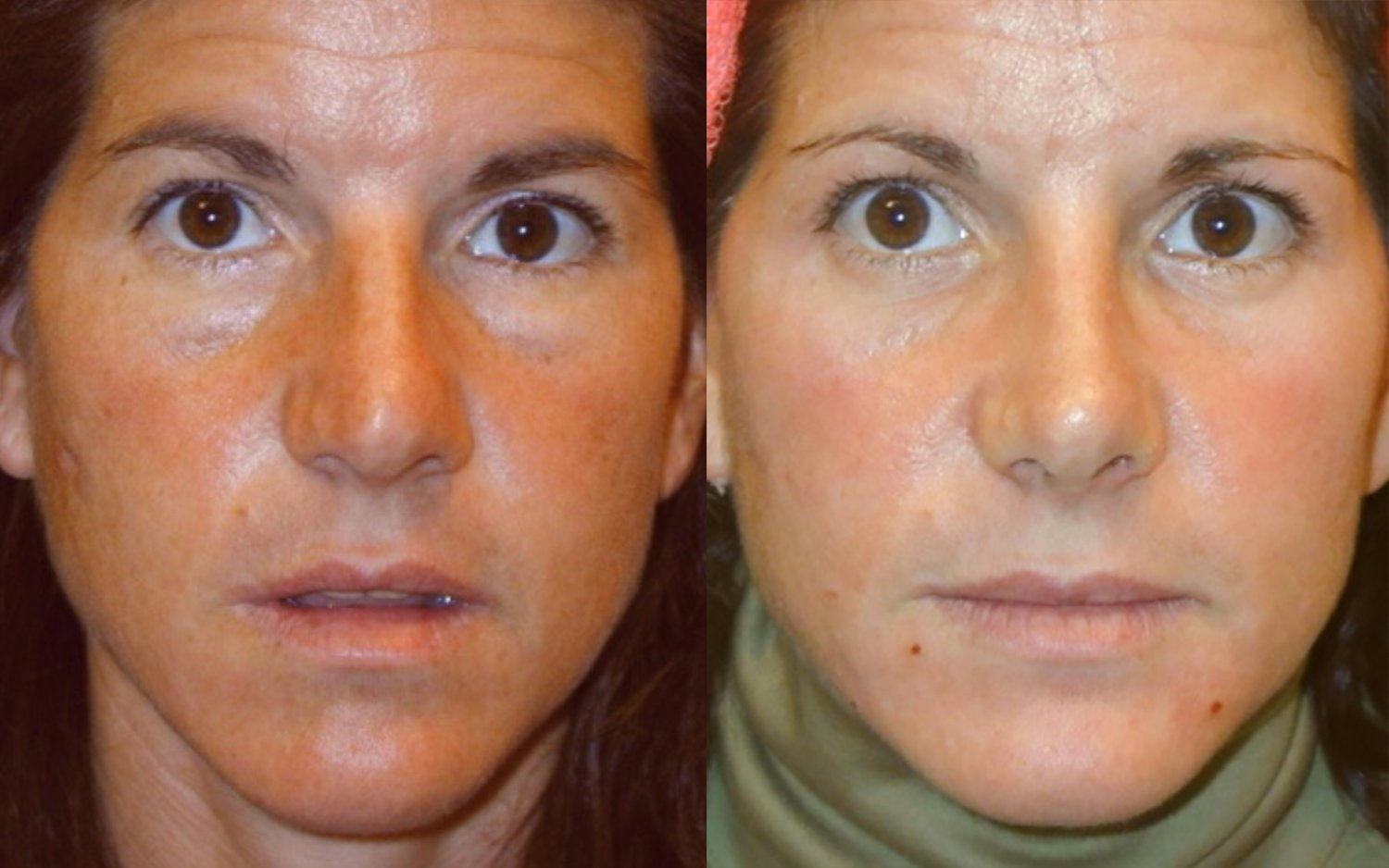 rhinoplasty, small hump and tip reduction