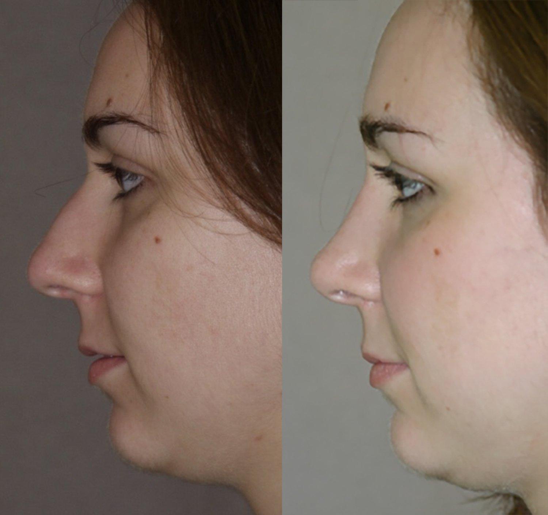 rhinoplasty bulbous tip, small bump, side