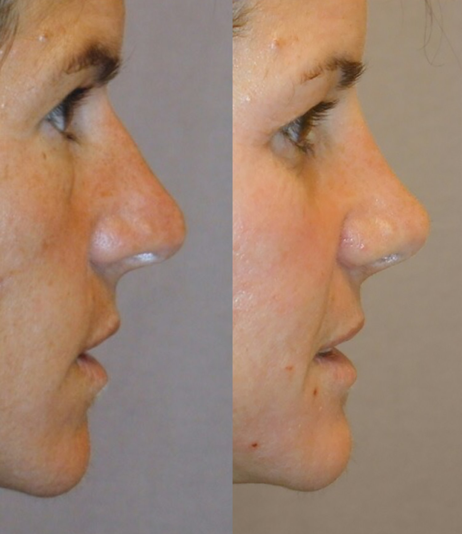 rhinoplasty, small hump and tip reduction, side
