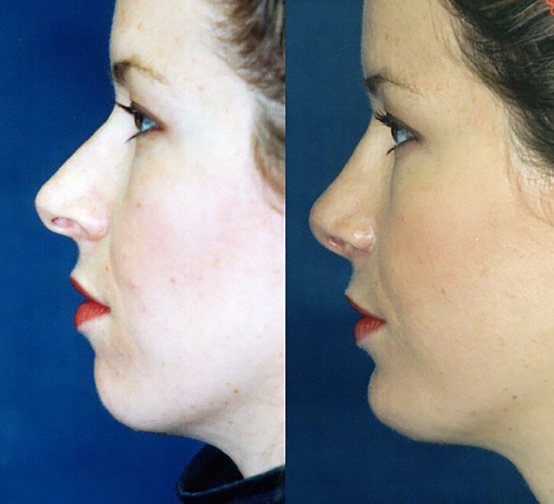 rhinoplasty with chin implant, side
