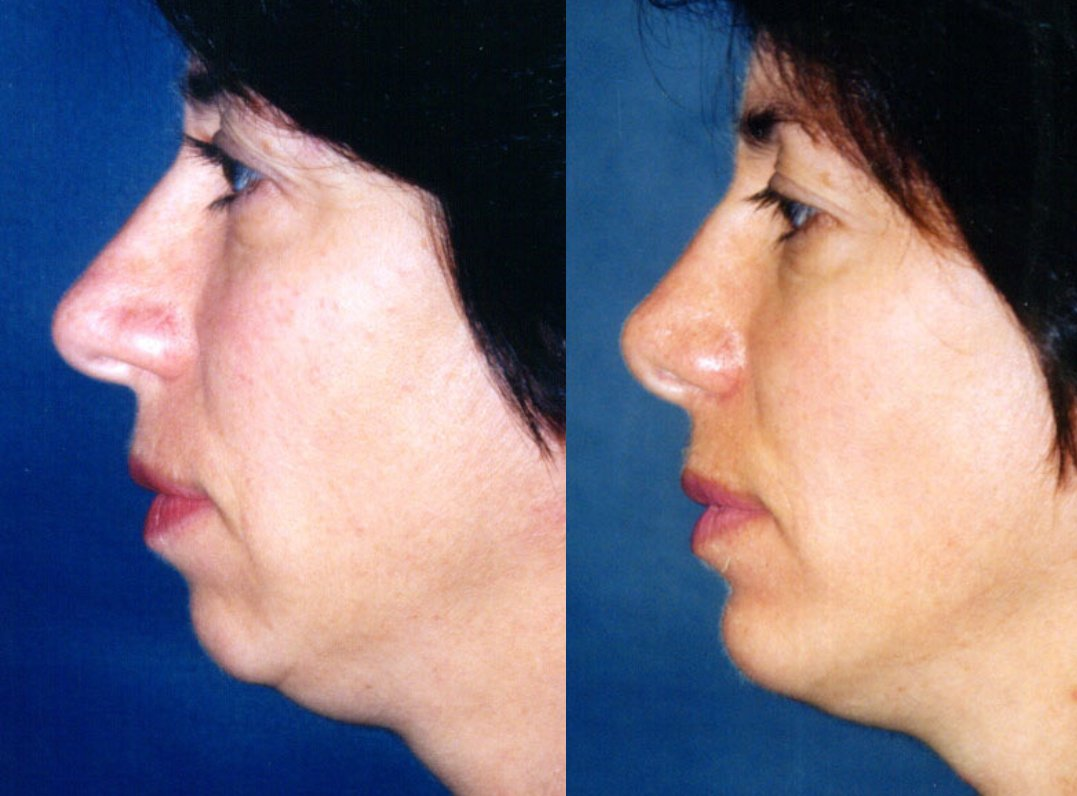 rhinoplasty without fracture, chin augmentation, side