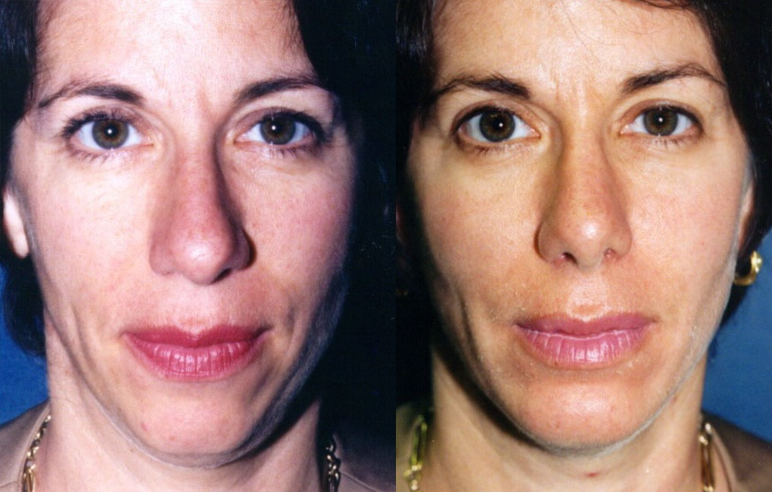 rhinoplasty without fracture, chin augmentation