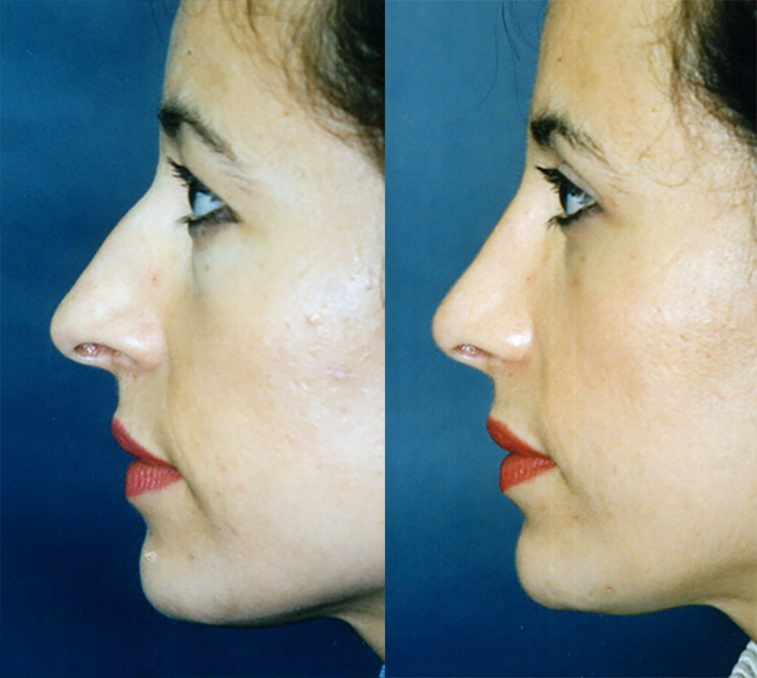 rhinoplasty, crooked nose, nostril narrowing, side