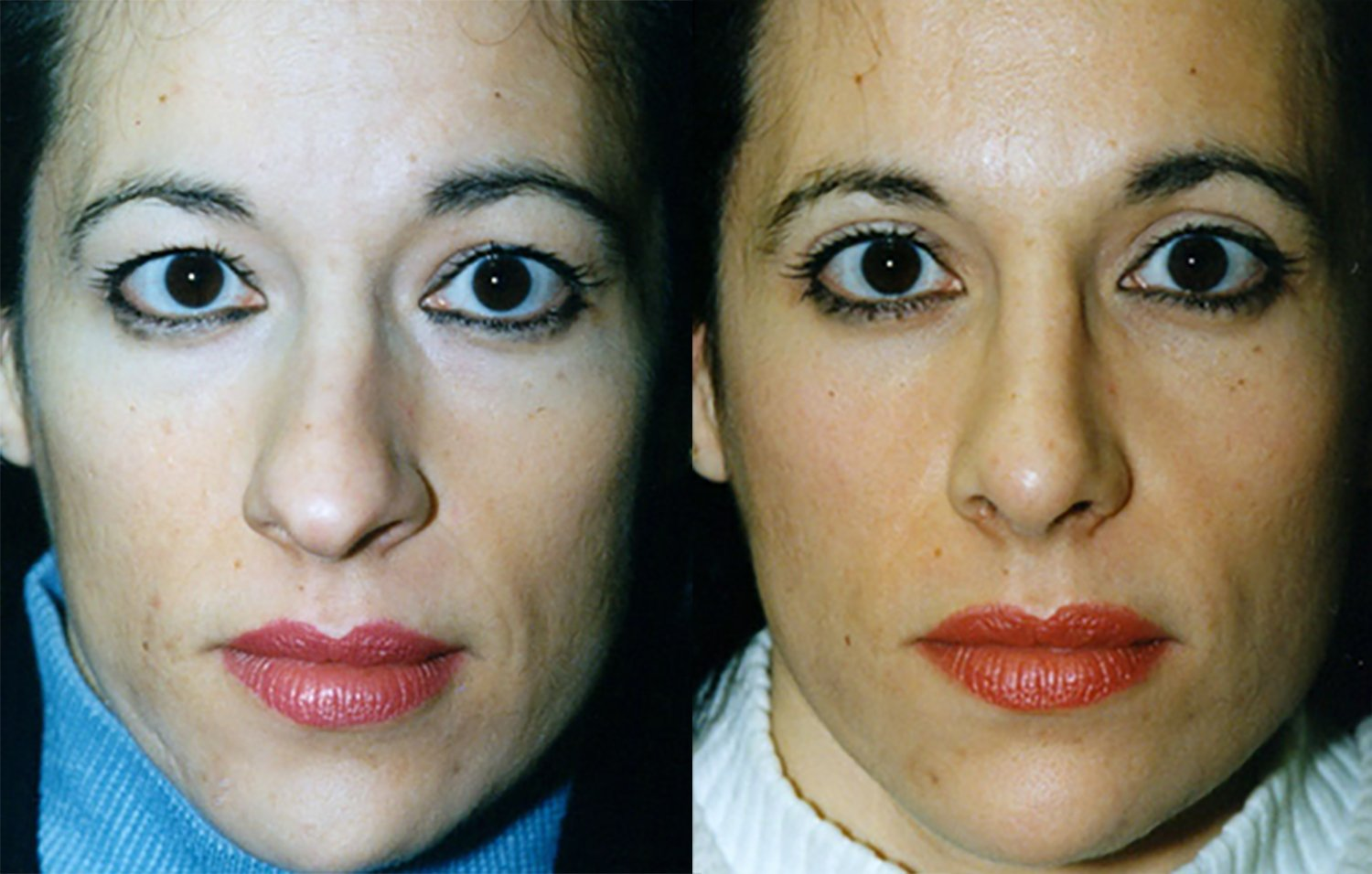 rhinoplasty, crooked nose, nostril narrowing