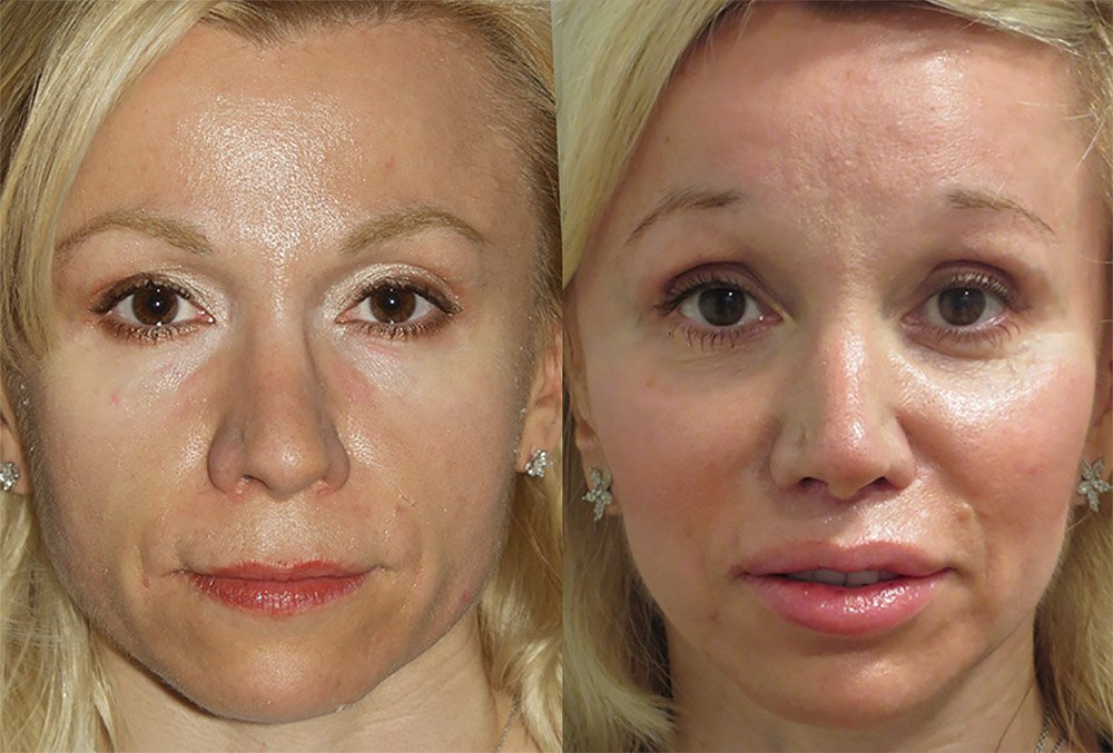 Fat injection lips and cheeks with chin implant, upper lip shortening, nasal tip plasty