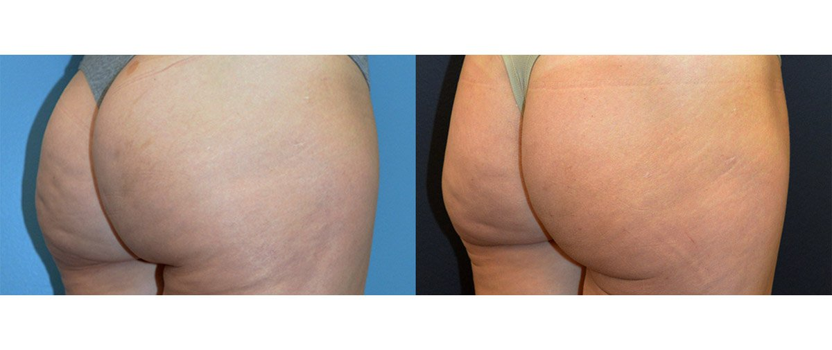 42-year-old fat injection post lipo depression, release of dimples, 5 months, right oblique