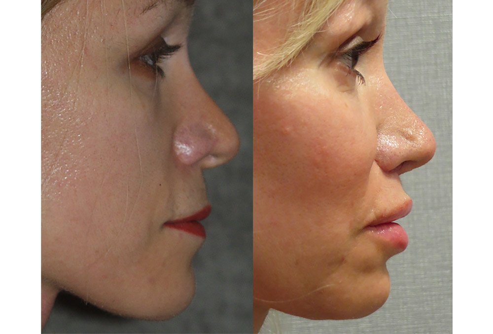 Fat injection lips and cheeks with chin implant, upper lip shortening, nasal tip plasty, side view