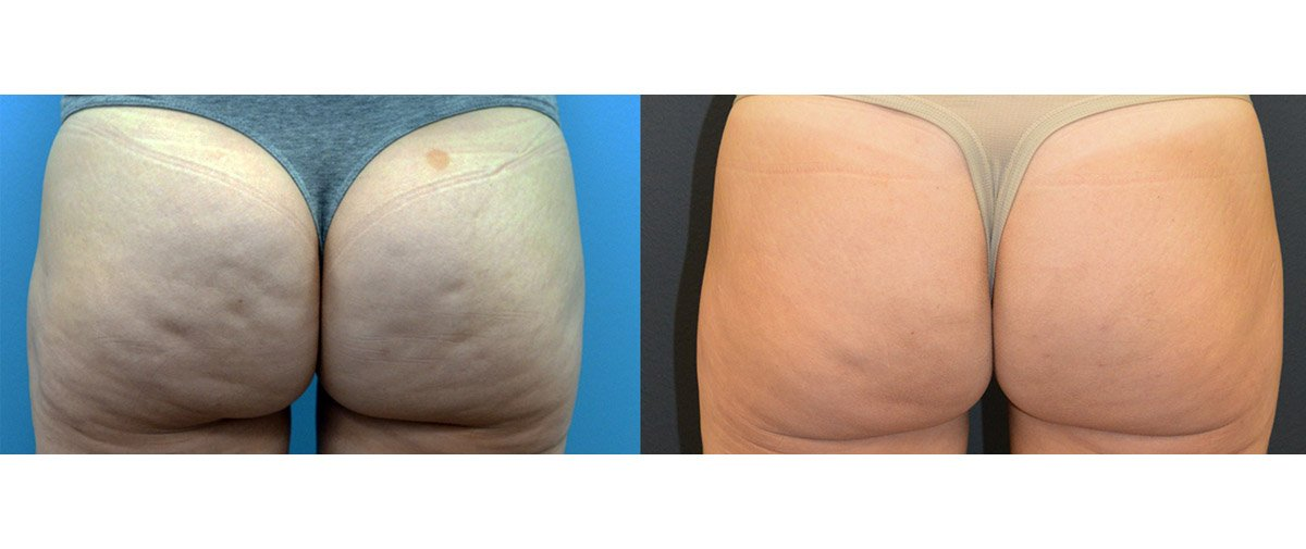 42-year-old fat injection post lipo depression, release of dimples, 5 months
