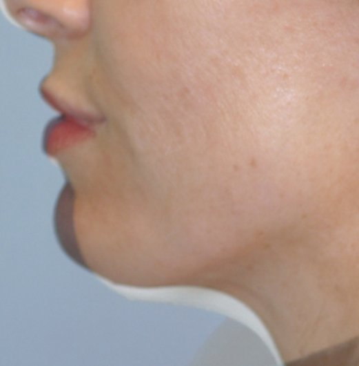 33-year-old, rhinoplasty and chin augmentation, 15 years, front 72 dpi side overlap comparison cropped
