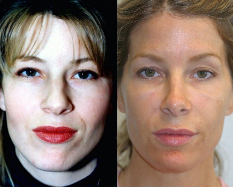 33-year-old, rhinoplasty and chin augmentation, 15 years