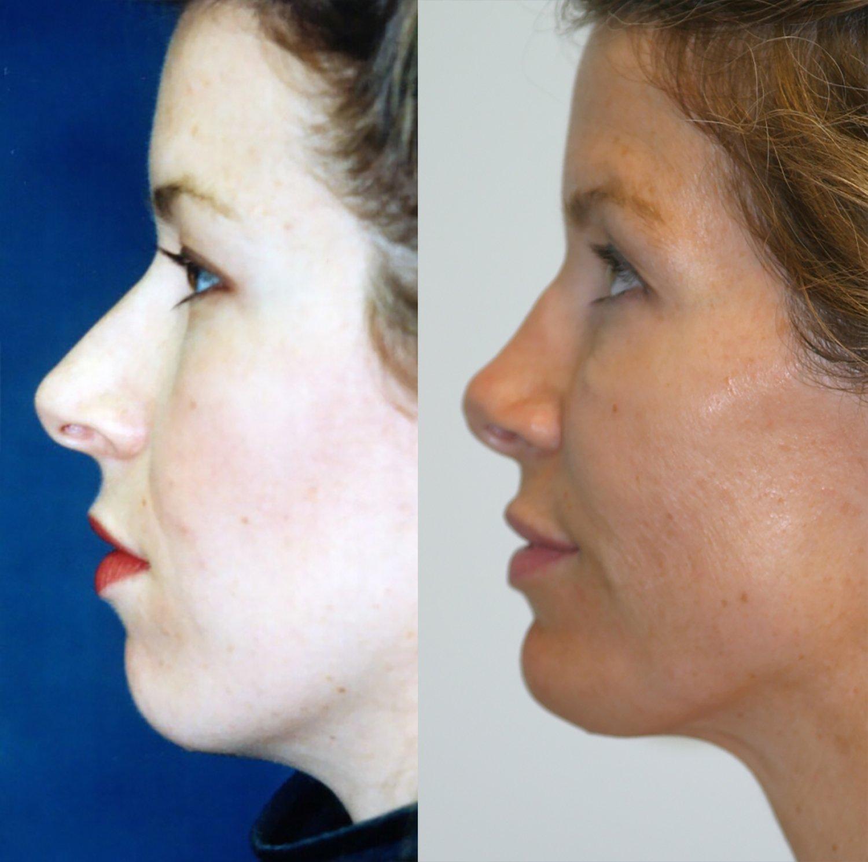 33-year-old, rhinoplasty and chin augmentation, 15 years, side