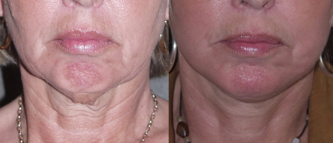 56-year-old, facelift, chin augmentation, 15 months