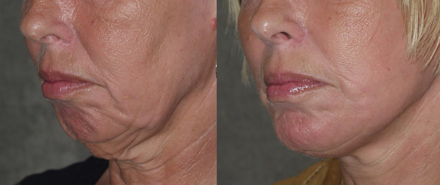 56-year-old, facelift, chin augmentation, 15 months, oblique