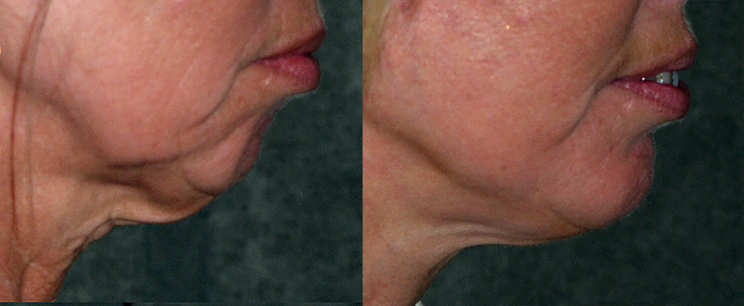 56-year-old, facelift, chin augmentation, 15 months, side
