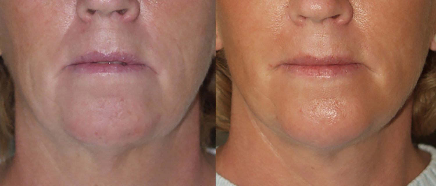 57-year-old, edit front facelift & chin augmentation,, 4 months