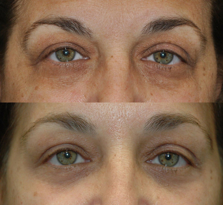58-year-old endoscopic brow-lift, lower eyelid transconjunctival blepharoplasty with fat transposition & KIRWAN Skin Brightening Cream, 6 weeks, forward gaze