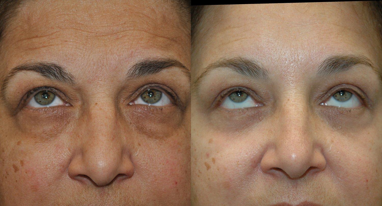 58-year-old endoscopic brow-lift, lower eyelid transconjunctival blepharoplasty with fat transposition & KIRWAN Skin Brightening Cream, 6 weeks, upward gaze