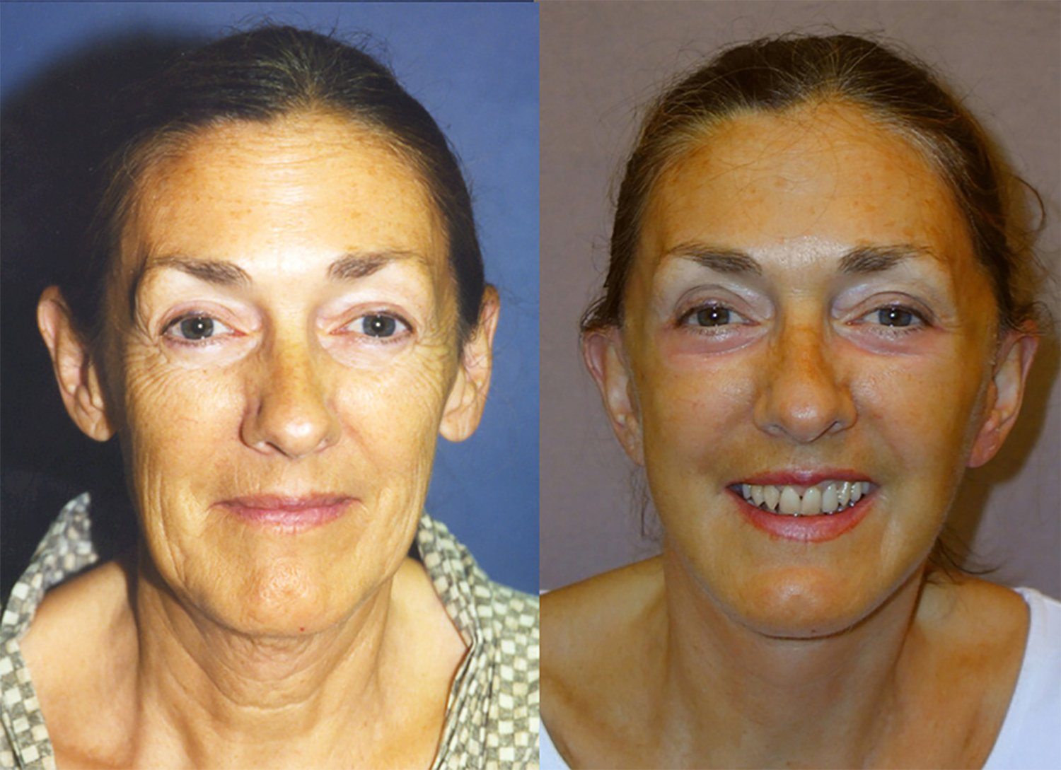 62-year-old facelift, upper and lower eyelids, peel lower eyelids, one year