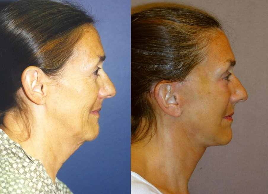 62-year-old facelift, upper and lower eyelids, peel lower eyelids, one year, side
