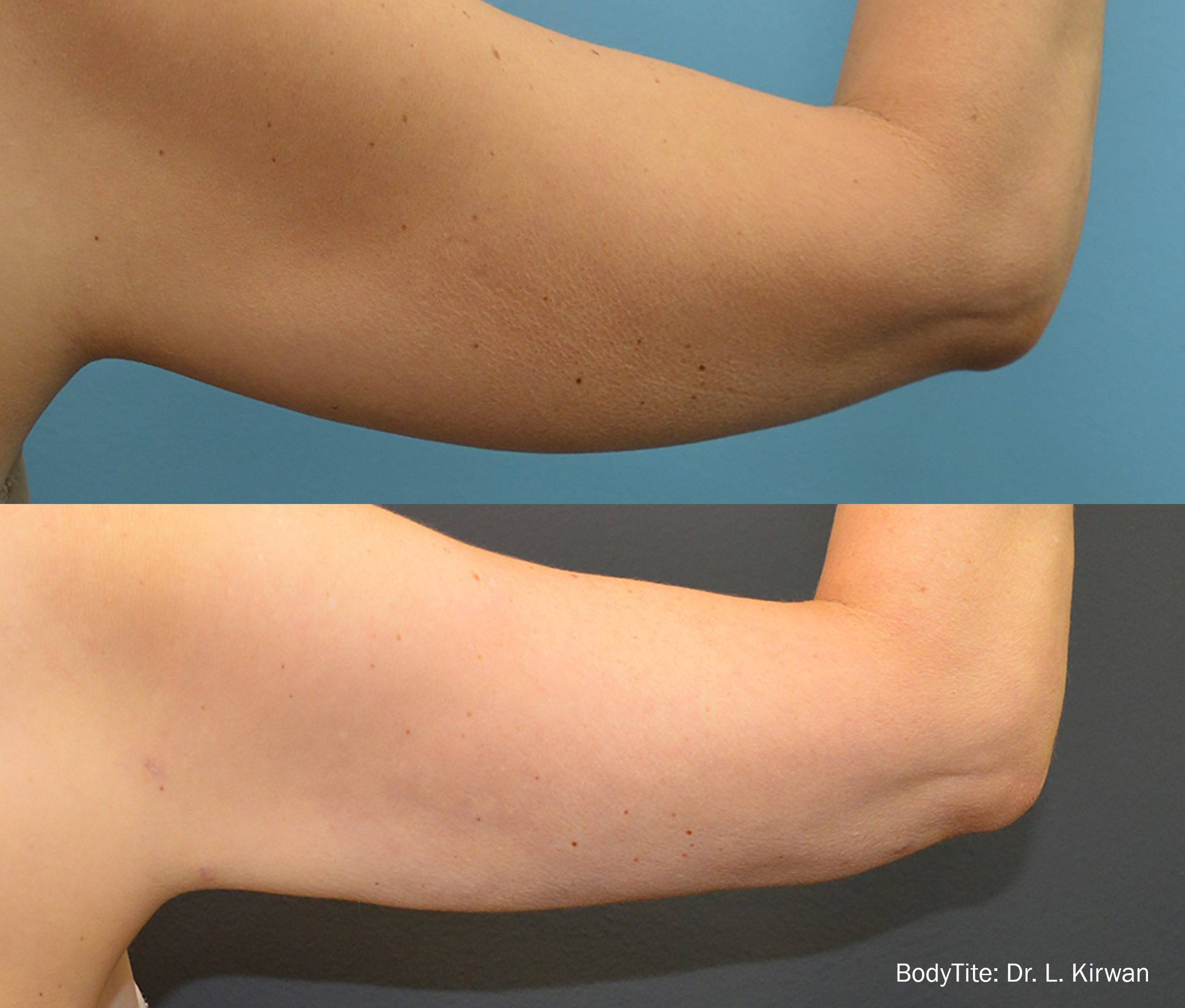 49-year-old BodyTite to arms